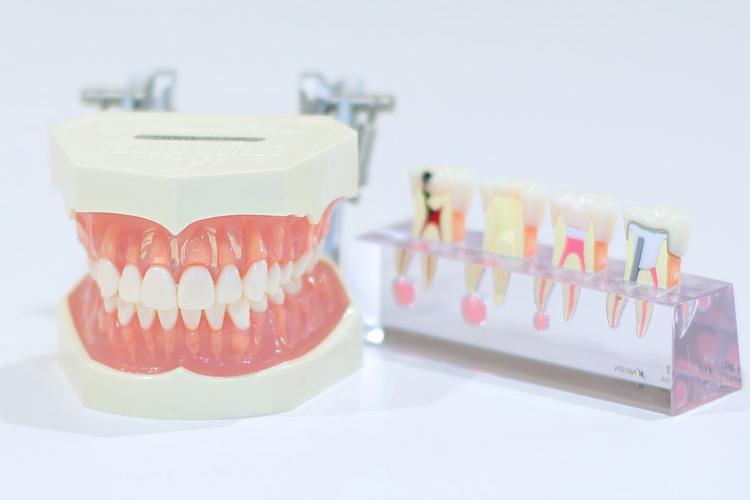 歯のパーツの夢の夢占い